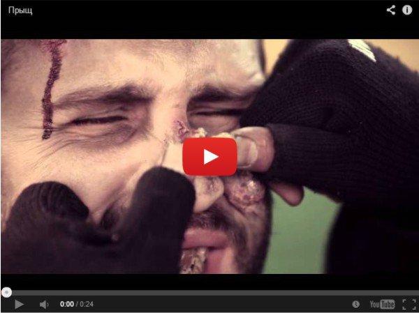 Прыщ на носу у бомжа - рвотное видео