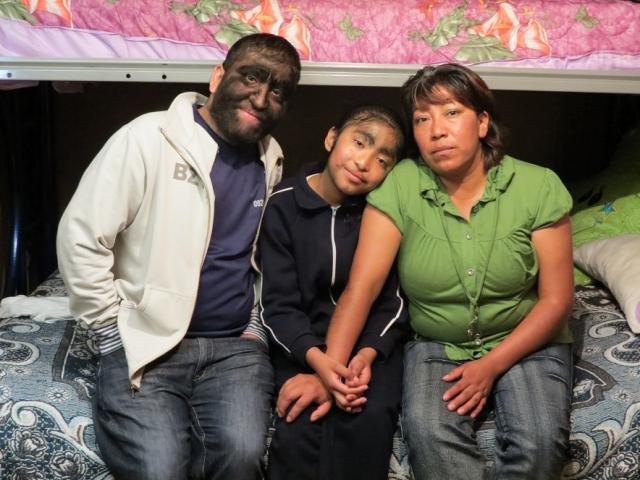 Самая волосатая в мире семья. Мутация генов