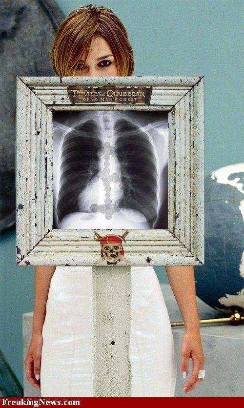 Знаменитости под рентгеном. Картинка дня