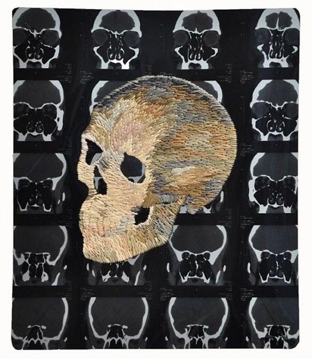 Рентгеновские снимки и вышивка - сочетание несочетаемого